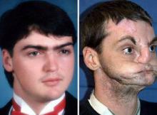 შეიძლება ჩემი გარდაცვლილი ძმის სახეს შევეხო?-ამერიკაში გარდაცვლილი მამაკაცის სახე  სხვა მამაკაცს გადაუნერგეს