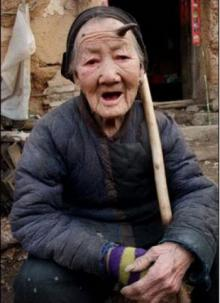 101 წლის ქალს შუბლზე რქა გამოუვიდა