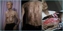 ეს მამაკაცი ატომურ აფეთქებას გადაურჩა, ტუმცა 70 წლის შემდეგ მის ტანჯვას საზღვარი არ აქვს!