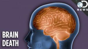 5 ძირითადი მიზეზი რის გამოც ტვინის უჯრედები კვდება
