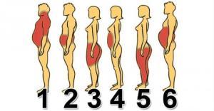 სიმსუქნის 6 ტიპი. რა იწვევს და როგორ ვებრძოლოთ ჭარბ წონას? ამის შემდეგ ფორმაში იქნებით