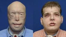 26 საათი სახის სრული გადანერგვისთვის-ამერიკაში უნიკალური ოპერაცია ჩატარდა