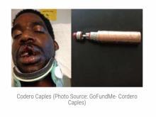 მამაკაცს ელექტრონული სიგარეტი აუფეთქდა,რამაც კინაღამ მისი პარალიზება გამოიწვია