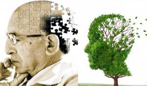ალცჰაიმერის დაავადება- სიმპომები და გამომწვევი მიზეზები