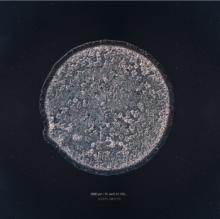 როგორია მიკროსკოპით დანახული ცრემლი