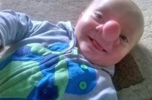 """რეალური """"პინოქიო"""" ოლლი ტრეზისი, ბავშვი რომელიც ურთულესი ოპერაციების წყალობით სრულიად გამოჯანმრთელდა"""