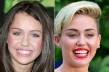 დაუჯერებელი ფოტოები, ცნობილი ადამიანები კბილების გაკეთებამდე და გაკეთების შემდეგ.