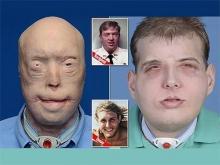 14 წელი სახის გარეშე და გრანდიოზული ოპერაციის პრეს-რელიზი