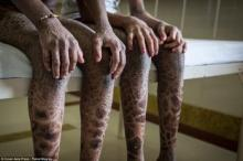 სხეულზე გველის კანის მქონე ინდოელი და-ძმა, გამაოგნებელი ფოტოები