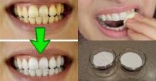 კბილების გათეთრება 2 წუთში. ხალხური რეცეპტი, რომლის წინაშე სტომატოლოგებიც უძლურნი არიან!