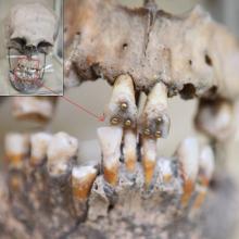 ჰკითხეთ აბა, თქვენს სტომატოლოგს, შეუძლია ამის გაკეთება? – ძვ. წ. აღრ. II ათასწლეულის სტომატოლოგია