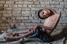 13 წლის ბიჭის იშვიათი დაავადება და საოცარი პლასტიკური ოპერაცია,  რომელმაც მისი ცხოვრება შეცვალა