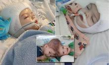 უნიკალური ოპერაცია აშშ-ში: სიამის ტყუპები, რომლებიც თავებით იყვნენ  შეზრდილი, ერთმანეთს  დააცილეს