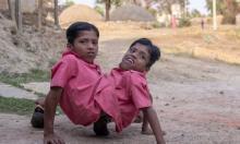 სიამის ტყუპები ინდოეთიდან