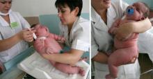 კიდევ ერთი სასწაული მედიცინაში- 18 კილოგრამიანი ბავშვი დაიბადა