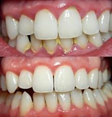 როგორ მოვიშოროთ ყვითელი ნადები კბილებიდან 5 წუთში, სტომატოლგთან ვიზიტის გარეშე