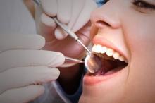 კბილის ბჟენი საჭირო აღარ იქნება