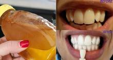 კბილების გათეთრება 2 წუთში და წარმოუდგენელი ეფექტი