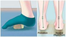 როგორ განვთავისუფლდეთ ფეხების ტკივილისაგან რამდენიმე წუთში