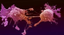 სასმელი, რომელიც სიმსივნურ უჯრედებს ანადგურებს. ამის ცოდნა მნიშვნელოვანია!