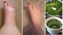 დაემშვიდობეთ შეშუპებულ და დასიებულ ფეხებს სწრაფად, მარტივად და იაფად, ხალხური მედიცინის წყალობით