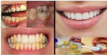 დაემშვიდობეთ გაყვითლებულ კბილებსა და კარიესს 2 წუთში