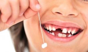 არ გადააგდოთ ამოღებული, ბავშვის სარძევე კბილი! და, აი რატომ