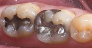 თუ კბილზე გაქვთ მსგავსი ბჟენი - დაუყოვნებლივ მოიცილეთ!