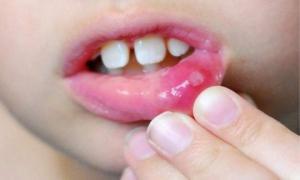 სტომატიტის მკურნალობის ეფექტური საშუალება, სახლის პირობებში