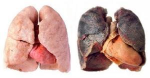 როგორ გავწმინდოთ ფილტვები მოწევის შეწყვეტის შემდეგ: 4 გზა სხეულიდან ტოქსინების გამოსადევნად!