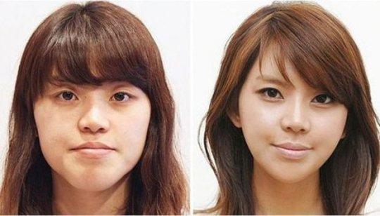 სამხრეთ კორეის პლასტიკური ქირურგიის სასწაულები