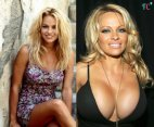 Pamela Anderson-ი უწინ და ეხლა