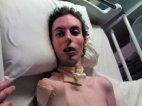 დედა ნარკოტიკებით გარდაცვლილი შვილის შოკისმომგვრელ ფოტოს აქვეყნებს