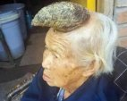 87 წლის ჩინელ მოხუცს თავზე 13 სანტიმეტრიანი რქა ამოუვიდა