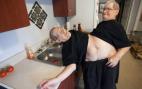 63 წლის ტყუპები, რომლებიც ერთ სხეულს ატარებენ!