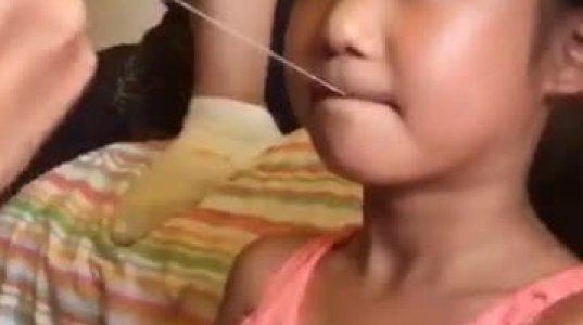 ბავშვს კბილი გააძრო
